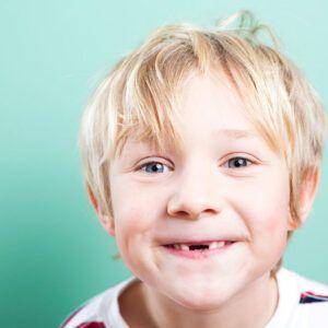 پوسیدگی دندان های قدامی کودکان